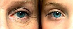 Tratamento para rugas. Estética Facial Campinas