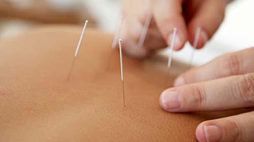 Aplicação dos pontos na acupuntura oferecida pelo Espaço Corpo em Barão Geraldo