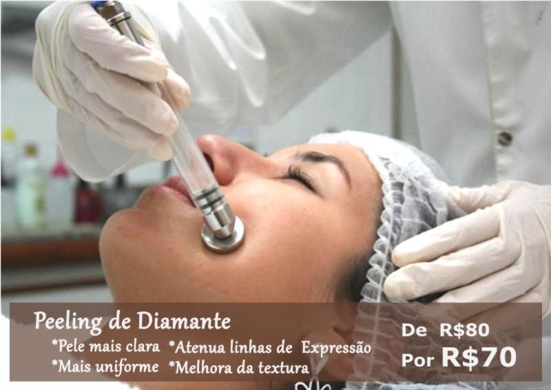 Promoção Peeling de Diamante em Campinas