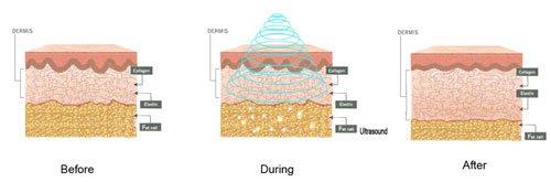 Primeira imagem de como as ondas da Lipocavitação funcionam na gordura.